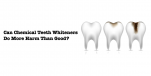 Can Chemical Teeth Whiteners Do More Harm Than Good?