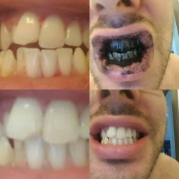 Befor and After Charcoal Teeth Whitening