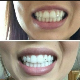 Befor and After Warpaint Teeth Whitening