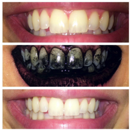 Before and After Charcoal Powder Teeth Whitening