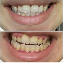 Before and after teeth whitening by warpaint
