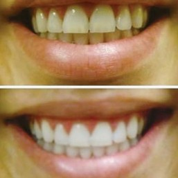 Teth Whitening Before And After