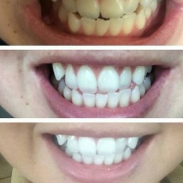 Warpaint Teeth Whitening Before And After Customer