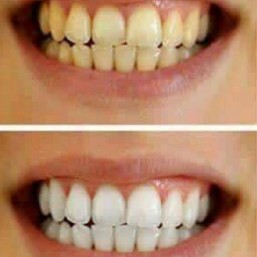 Whiten teeth before and after