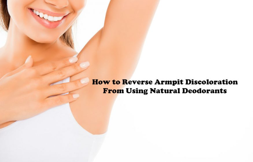 How to Reverse Armpit Discoloration From Using Natural Deodorants