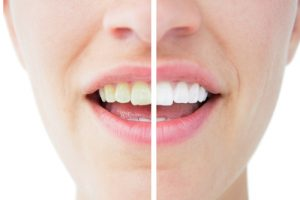 teeth whitener before and after