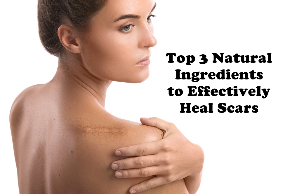 Top 3 Natural Ingredients to Effectively Heal Scars featured image by Love Thyself