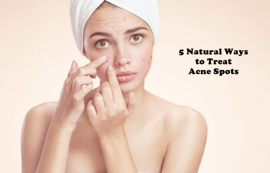 5 Natural Ways to Treat Acne Spots