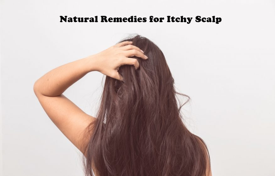 Natural Remedies for Itchy Scalp