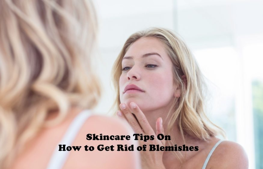 Skincare Tips On How to Get Rid of Blemishes